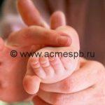 Симптомы и лечение плоскостопия у детей