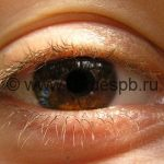 Регулярное употребление аспирина грозит слепотой – исследование